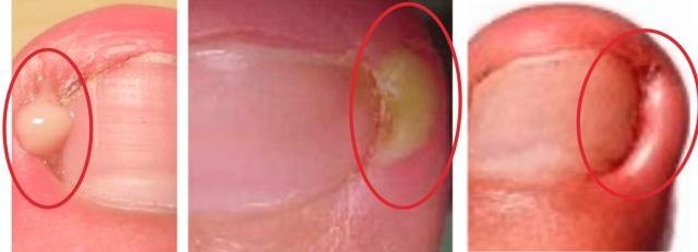 巻き爪悪化化膿