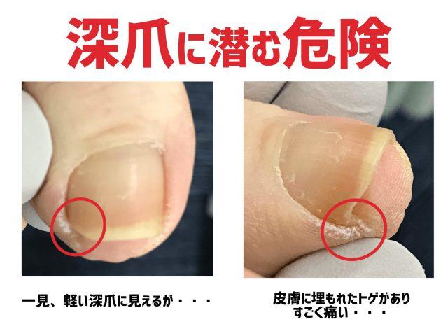深爪の危険【金沢巻き爪】