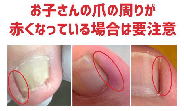 爪の横が赤い