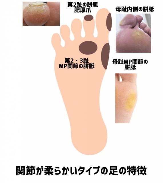 関節が柔らかいタイプの足の巻き爪