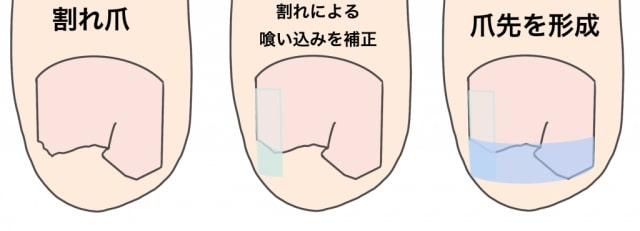 割れ爪の修復