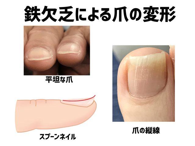 巻き爪の原因はタンパク質不足!?爪と栄養の知られざる関係【金沢巻き爪】