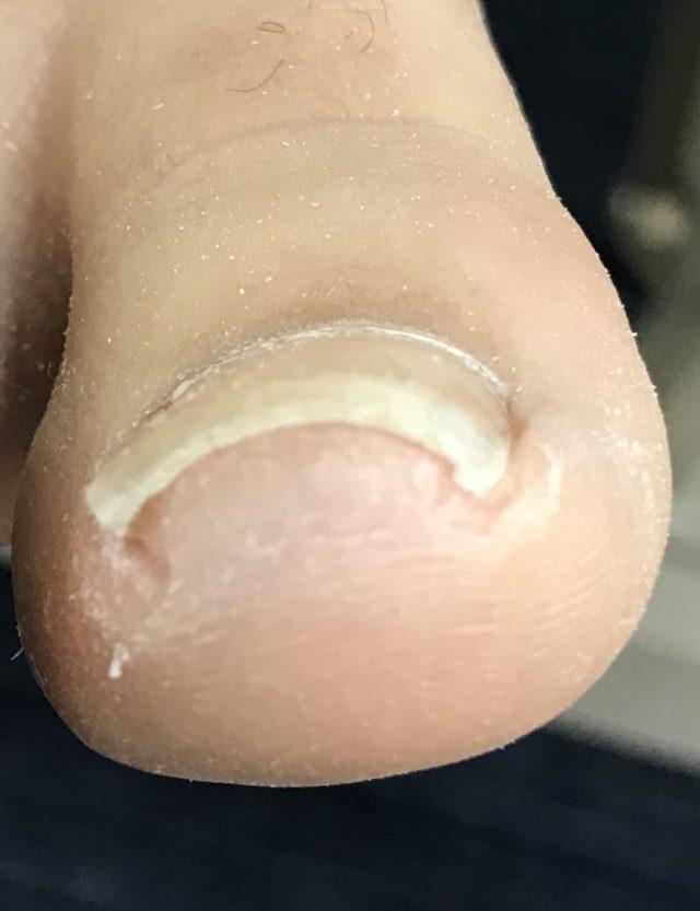 痛くない巻き爪矯正