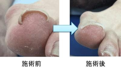 巻き爪矯正の前後