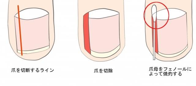 巻き爪手術フェノール法