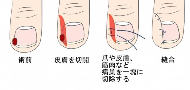 巻き爪手術鬼塚法