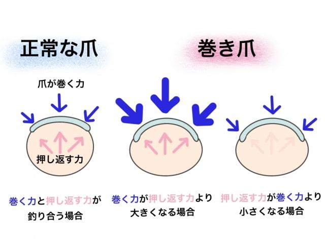 巻き爪の原因