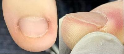深爪(陥入爪)