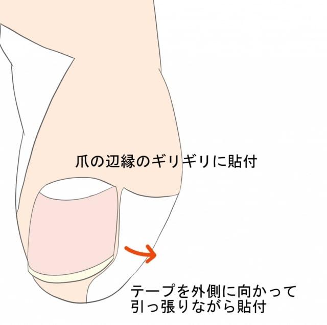 巻き爪のテーピング法