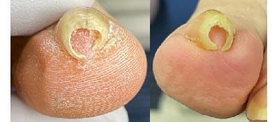 重度巻き爪-