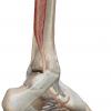 後脛骨筋腱機能不全