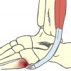 短腓骨筋腱付着部炎