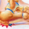 踵骨下滑液包炎
