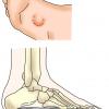 足底線維腫
