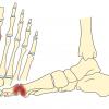 親ゆびの付け根の痛み 強剛母趾の原因と治療法とは【金沢市のアルコット接骨院/疾患