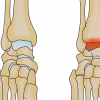 変形性足関節症