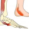 腓骨筋腱炎