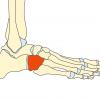 立方骨症候群